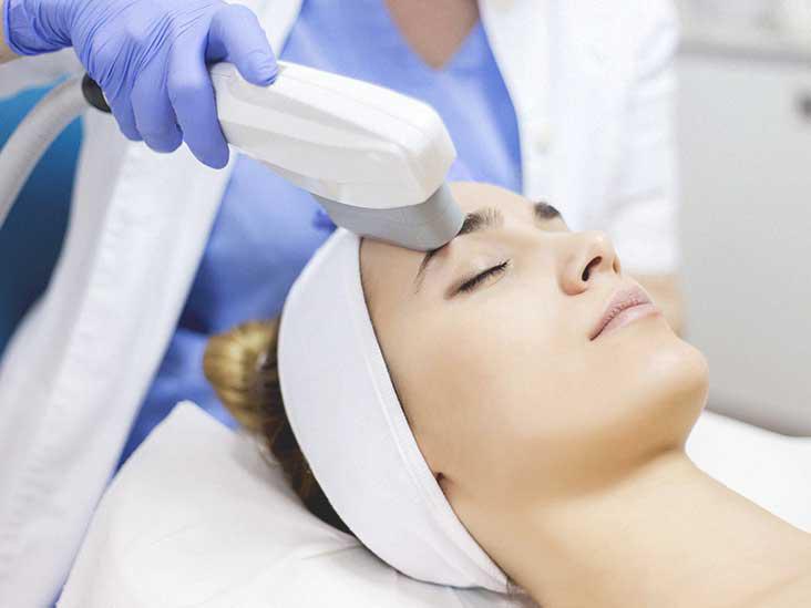 IPL tretmani lica