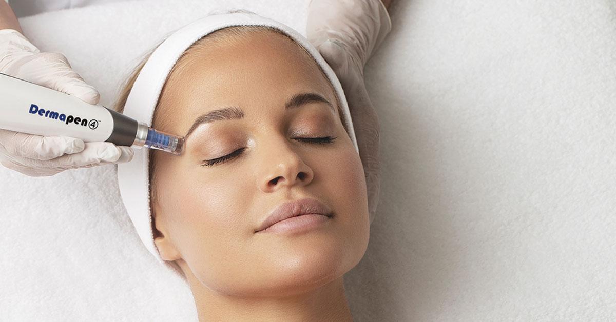 Uklanjanje mrlja i pigmentacije lica
